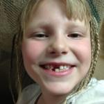 Lilah minus 2 teeth