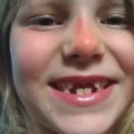 Lilah minus 4 teeth